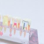 インプラントの周りの歯茎が腫れて出血!歯医者へ行ってきました