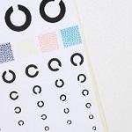 網膜の状態を調べに眼底検査を数年ぶりに受けた結果と反省